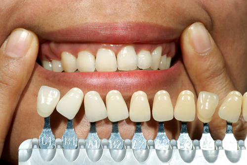 emergency tooth extraction in North Lauderdale